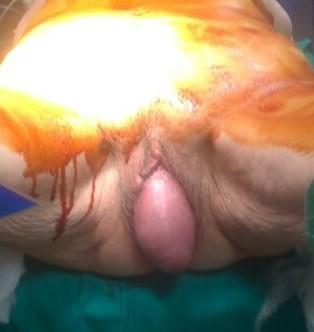Quale medicina da emorroidi interne