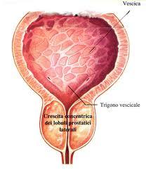 Rimozione della prostata